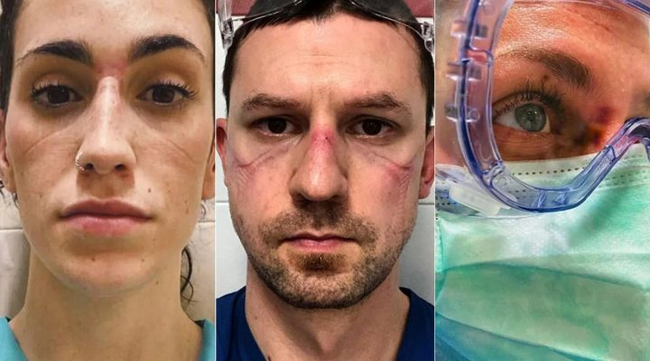 Así son las caras de las enfermeras que luchan contra el COVID-19