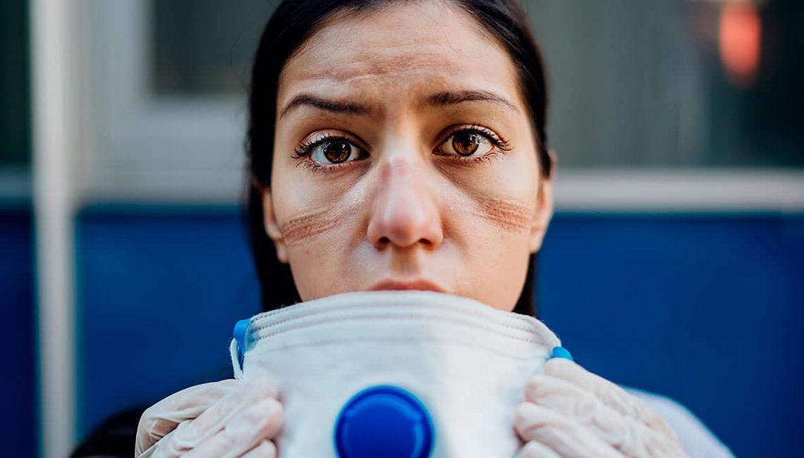Una enfermera muestra las marcas de la mascarilla en su rostro en plena crisis del COVID 19